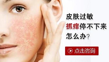 皮肤过敏怎样治疗